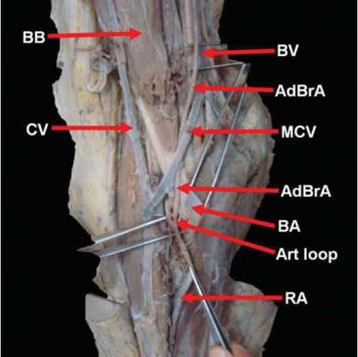 a case report of vasa aberrantia in the brachial artery: a, Cephalic Vein