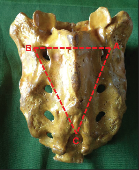 Morphometric study of sacral hiatus and its significance in caudal ...